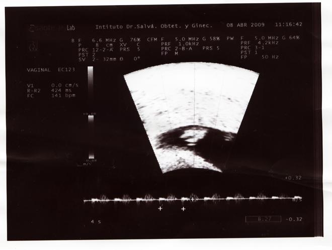 la primera ecografia